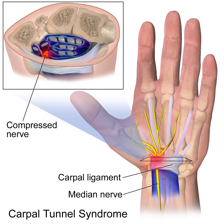 varicoza este un nerv în timpul intervenției chirurgicale