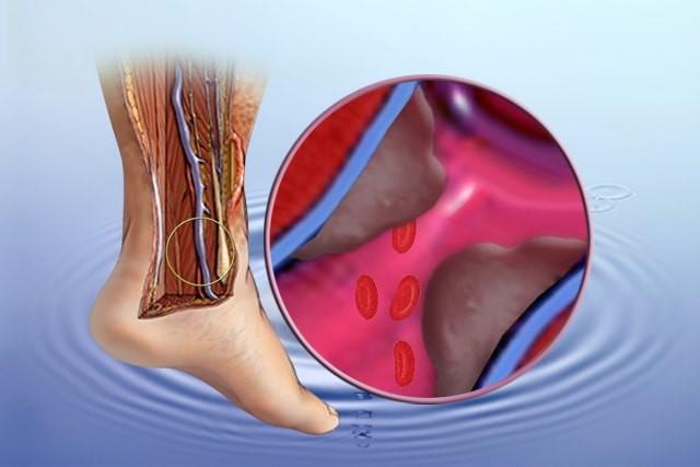 semne de picioare varicoase și tratament)