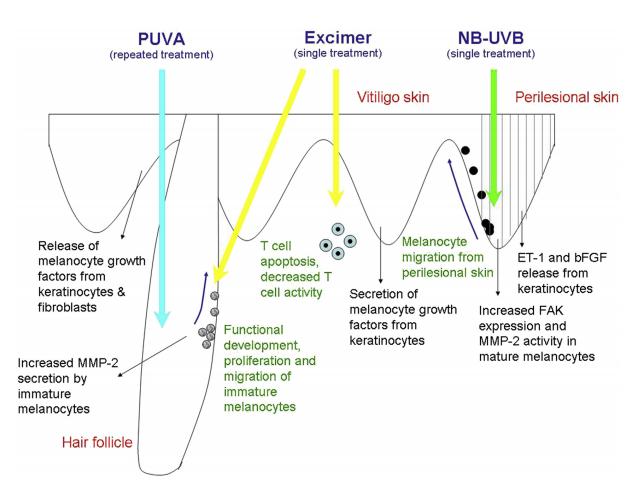 costul corecției laserului varicoză